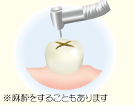 むし歯を削ります